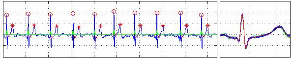 Lugovaya T S  Biometric human identification based on